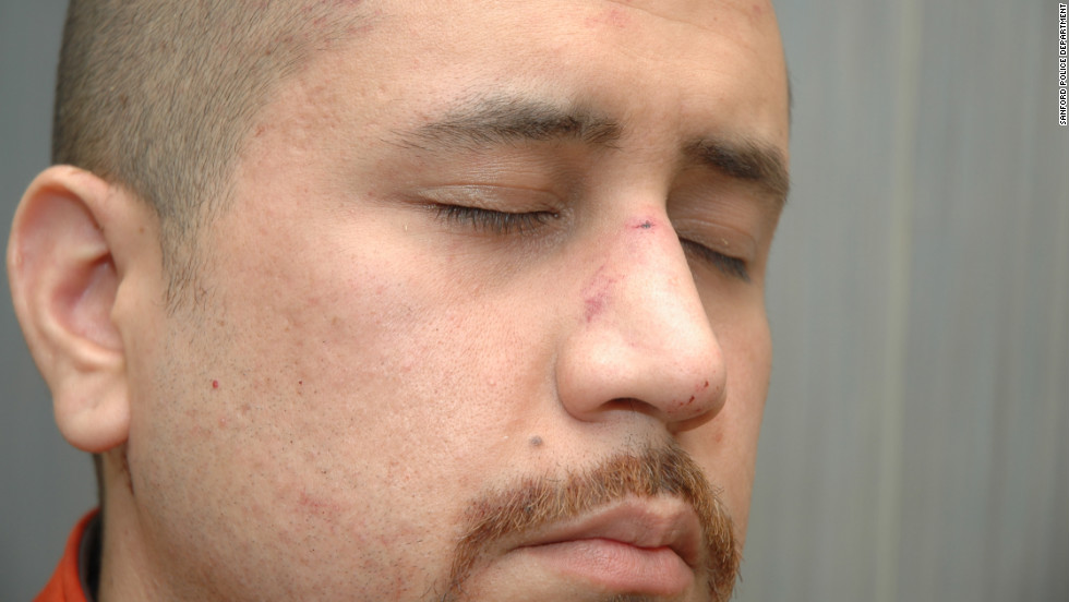 "According to a fire department report, Zimmerman had ""abrasions to his forehead,"" ""bleeding/tenderness to his nose"" and a ""small laceration to the back of his head"" when he was treated at the scene."