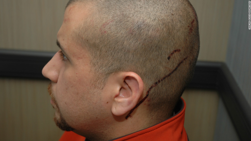 "Zimmerman said that before he shot the teenager, he was ""assaulted (by Martin) and his head was struck on the pavement,"" according to a police report."