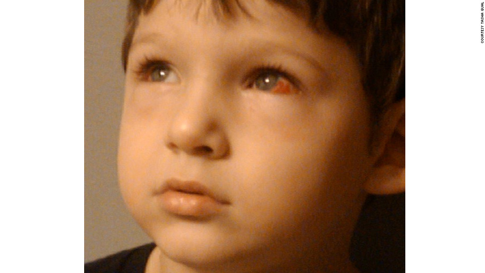 Jesse Matlock had a wandering right eye. A simple surgery could fix it, but the surgeon cut into the left eye instead of the right. According to Matlock's mother, Tasha Gual, the surgeon told her she lost her sense of direction and didn't realize she'd operated on the wrong eye until after the operation