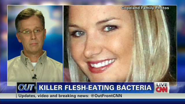 Flesh-eating bacteria victim 'courageous'