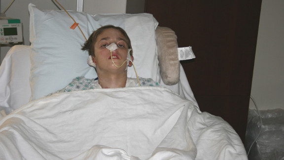 Michael Brewer spent two months in the hospital in 2009 when three teens set him on fire in a dispute over $40.