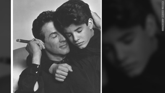 Sage Stallone died of atherosclerosis, which brought on a heart attack.