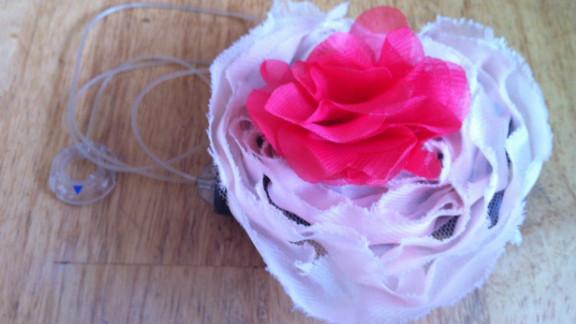 A Hanky Pancreas floral cover turns an insulin pump into a pretty accessory.