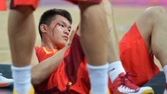 Chinese forward Zhu Fangyu bleeds during a men