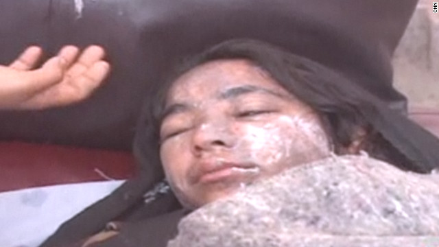 Afghan girls attacked with acid