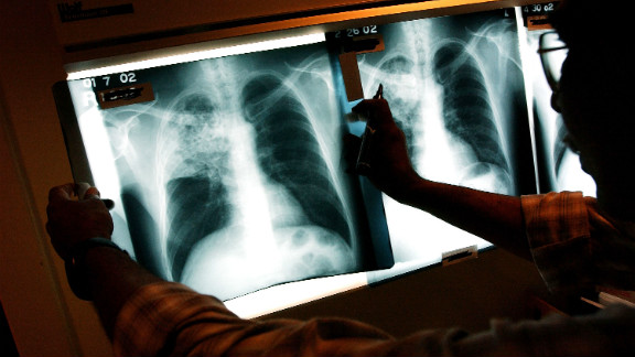 Tuberculosis is a bacterial infection that is spread through droplets in the air when infected people cough or sneeze.