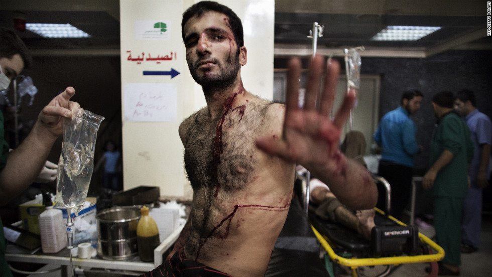 A Syrian rebel gestures as he waits to be treated for his wounds at an Aleppo hospital on Tuesday.