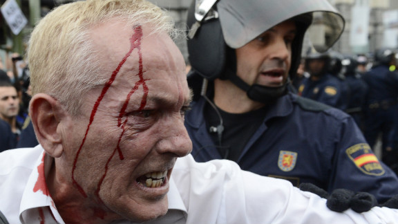 A riot police officer stands behind an injured protester after clashes. Demonstrators said police shot into the crowd with rubber bullets; police wouldn