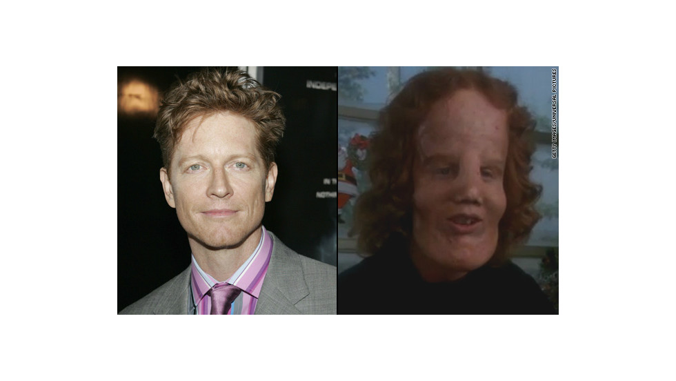 "The makeover for Eric Stoltz in 1985's ""Mask"" was astounding as Stoltz portrayed Rocky Dennis, a boy trying to live a normal life with the disorder lionitis. The transformation picked up an Oscar for best makeup."