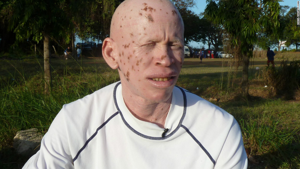 Witchdoctors' belief that albino body parts bring great wealth has led to attacks on people with albinism in western Tanzania. Suleiman Musa works to raise awareness about his genetic condition among Tanzanians.