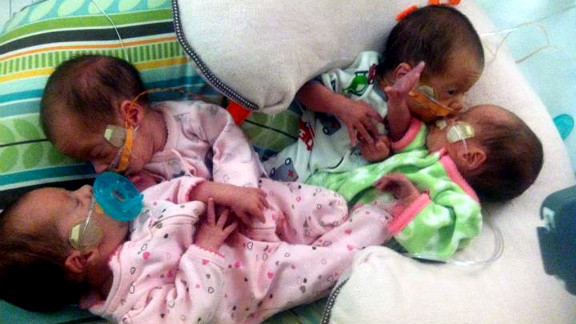 Wyatt, Rylie and identical twins Samantha and Braelynn were delivered via cesarean section at 30 weeks.