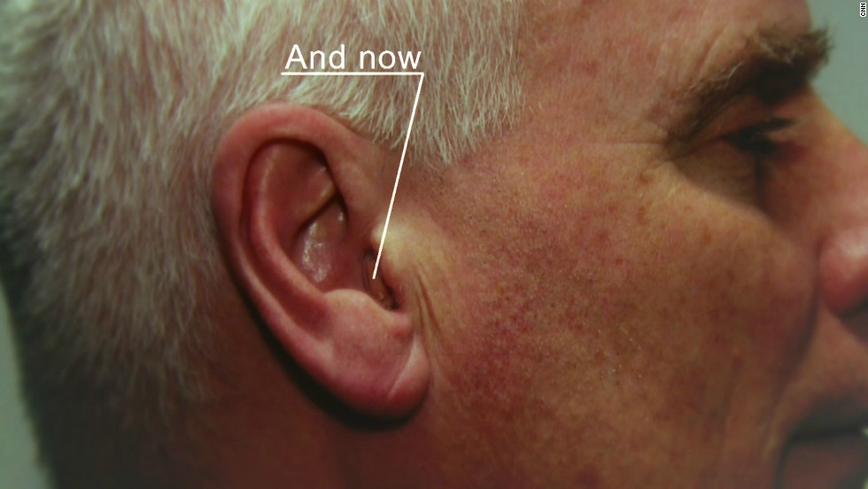 Today, companies like Widex are making hearing aids which are barely noticible, with amplification devices moving from behind to inside the ear.