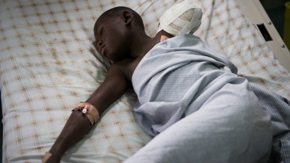 Twelve year old amputee Kakule Elie, hit by a stray bullet, lies in a bed in a hospital in Goma on November 20, 2012.