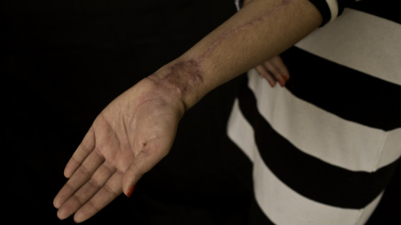 Scars on her left arm show where doctors took tissue that was then transplanted onto her face. Her emotional scars are also healing, and she's learning to trust in new ways.