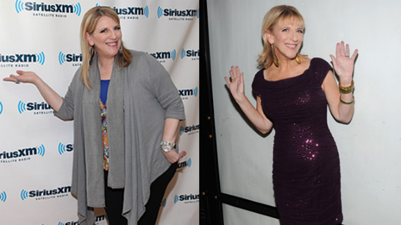 The comedian reportedly underwent surgery to help her shed 80 pounds and give her a new look.