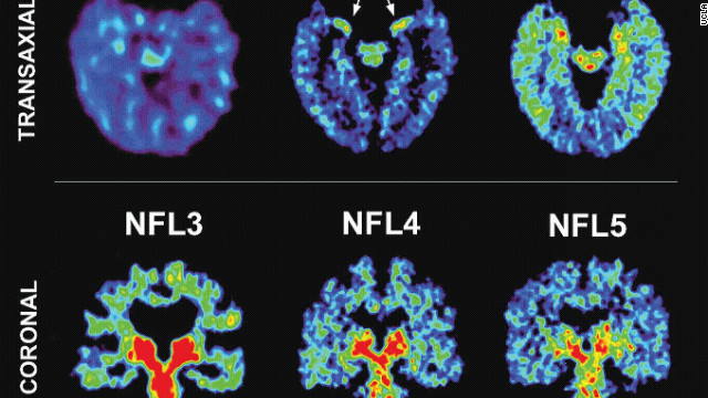 CTE is a degenerative brain disease linked to repeated trauma. A brain with CTE contains clumps of protein called tau.