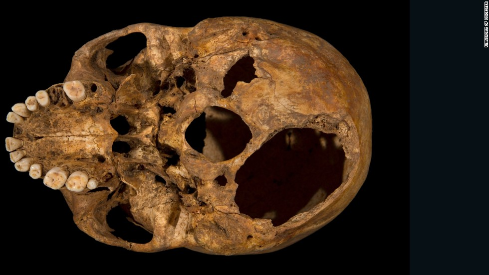 Scientists at the University of Leicester say their examination of the skeleton shows Richard met a violent death: They found evidence of 11 wounds -- nine to the head and two to the body -- that they believe were inflicted at or around the time of death. Here, the base of the skull shows one of the potentially fatal injuries. This shows clearly how a section of the skull had been sliced off.