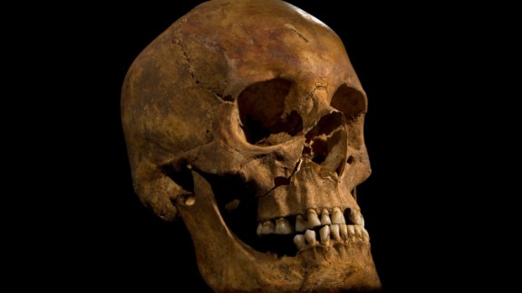 The skull showing the wound to the right cheek.