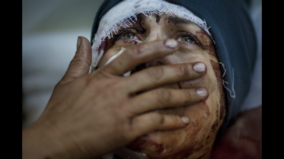 First prize -- general news single:  A woman identified as Aida cries while recovering from injuries she received when the Syrian army shelled her house on March 10, 2012, in Idlib. Her husband and two children were fatally wounded during the shelling, photographer Rodrigo Abd said.