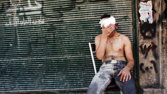 A Syrian man wounded by shelling sits on a chair outside a closed shop in Aleppo on September 4, 2012.