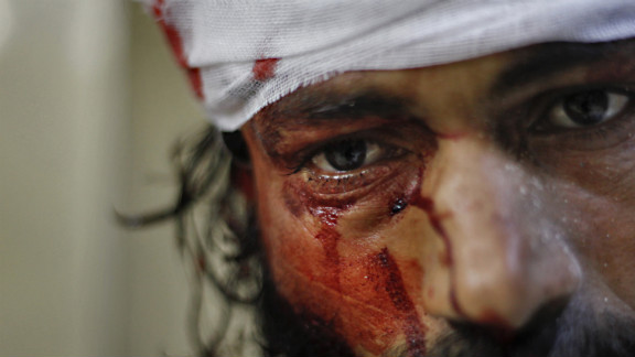 A man is treated for wounds after a government jet attacked the Karm al-Aser neighborhood in eastern Aleppo on October 31, 2012.