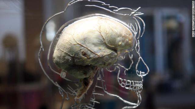 A real human brain being displayed as part of new exhibition at the @Bristol attraction is seen on March 8, 2011 in Bristol, England. The Real Brain exhibit - which comes with full consent from a anonymous donor and needed full consent from the Human Tissue Authority - is suspended in large tank engraved with a full scale skeleton on one side and a diagram of the central nervous system on the other and is a key feature of the All About Us exhibition opening this week.