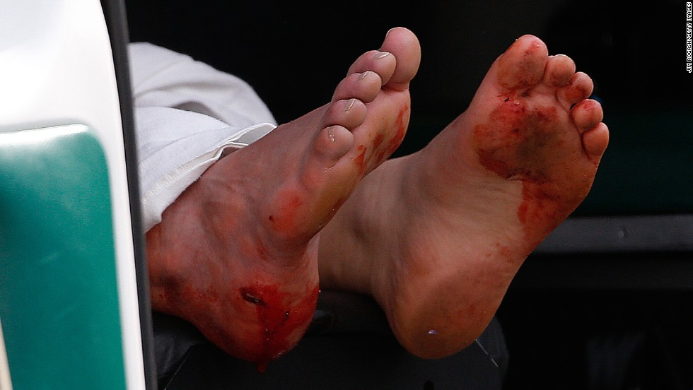 A man's blood-stained feet hang outside an ambulance.
