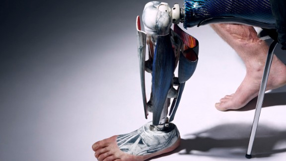 """""""I think 99% of the amputees I have met would like an alternative limb as we tend to think of our prosthetics more as items of clothing, like extended shoes or accessories, of which everyone has their own individual style,"""" says Seary."""