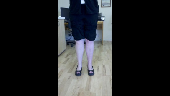 """Anissa Gustafson lost her leg in a car accident four years ago. She opts for a realistic looking prosthetic part of the time. """"I don't see it as being ashamed of my leg,"""" she says. """"For me it's just a matter of feeling more whole and beautiful."""""""