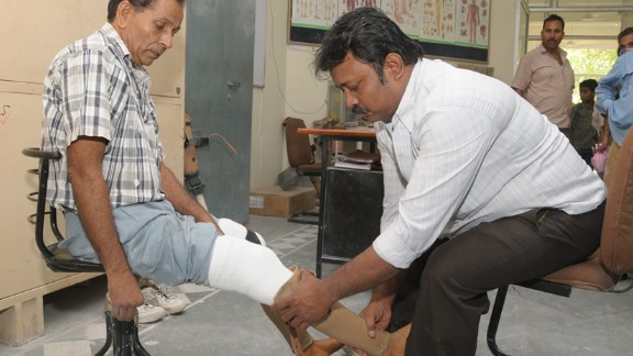 """Indian prosthetics organization, BMVSS, say they can produce an artificial limb for as little as $45. This compares to upwards of $10,000 dollars for a similar procedure in the U.S. Thousands of Indian amputees who would otherwise be unable to afford expensive medical procedures have benefited from BMVSS and their """"Jaipur Foot"""" program since it was established in 1975."""