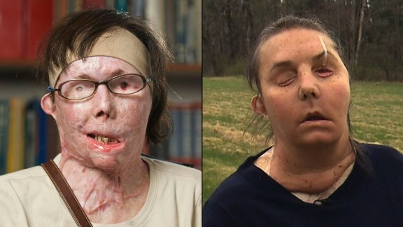 *FOR USE IN ELIZABETH COHEN PKG ONLY!* Handout photos of Carmen Tarleton's face transplant.