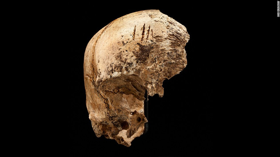 Researchers found numerous traces of violence on human bodies. This skull received a series of deep, forceful chops from a small hatchet or cleaver.
