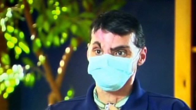Face transplant recipient faces public