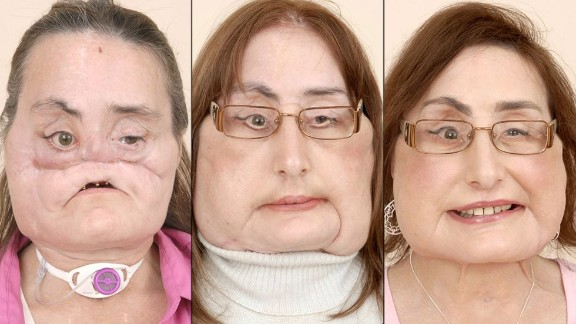 The first partial face transplant was done in Amiens, France, in 2005. Five years later, doctors in Spain completed the world's first full-face transplant on a man who severely damaged his face in an accident -- giving him a new nose, lips, teeth and cheekbones during 24 hours of surgery. The first full-face transplant done in the United States was performed on Connie Culp, seen here, in 2008.