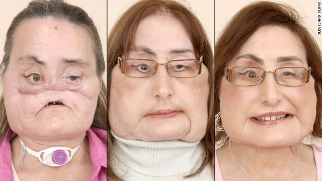 Face transplant patients: Where are they now?