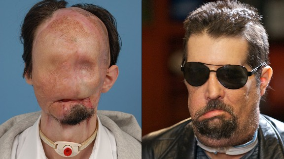 Dallas Wiens lost almost his entire face from burns in 2008. He underwent the first full facial transplant in the country in 2011.