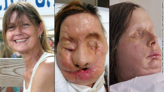 Charla Nash before, during and after her face transplant.