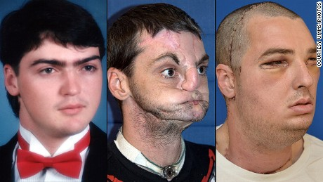 Richard Norris: left, in high school in 1993; center, after a gunshot injury; right, after face transplant surgery.