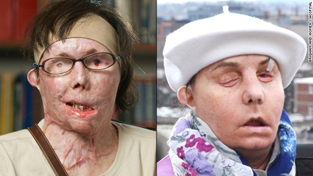 Carmen Tarleton as she appeared before (left) and after the face transplant.