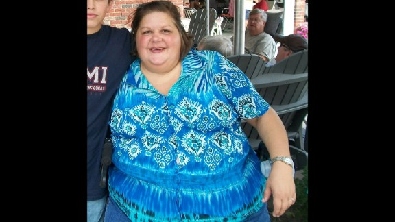 """At her heaviest, Theresa Borawski weighed 428 pounds. She had a """"sugar addiction"""" and was drinking up to 1,200 calories in soda a day."""
