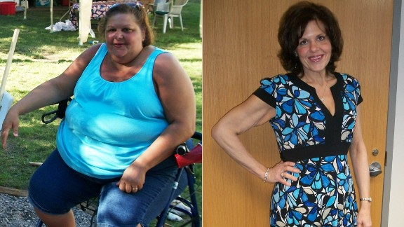"""At her heaviest in March 2011, Theresa Borawski weighed 428 pounds. """"I could no longer participate in life's activities and was forced to become a spectator while people around me lived their life,"""" she wrote on iReport.com. """"Today, I am 276 pounds lighter, 14 jean sizes smaller, and no longer need a wheelchair, walker or cane to get around."""""""