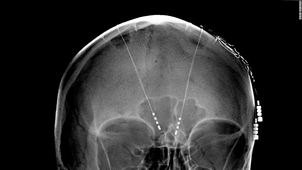 Deep brain stimulation using electrodes and implants for epilepsy and other conditions has helped to pave the way for social acceptance of invasive brain procedures.