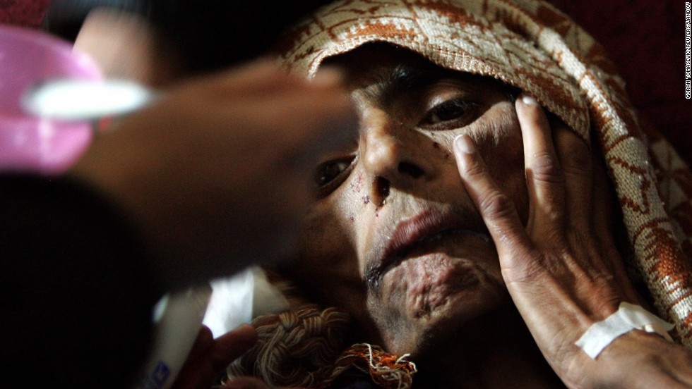 Naqsha Bibi, 40, is recovered alive from the debris of her collapsed home in Kashmir on December 12, 2005. She reportedly survived on rainwater and rotting food for more than 60 days after an earthquake struck the region on October 8.