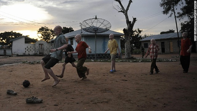 Malawi's albinos at risk of 'total extinction,' U.N. warns