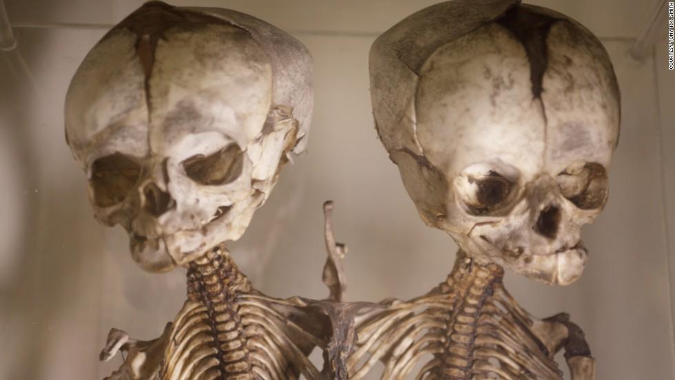 Worlds 10 Weirdest Medical Museums Cnn Travel