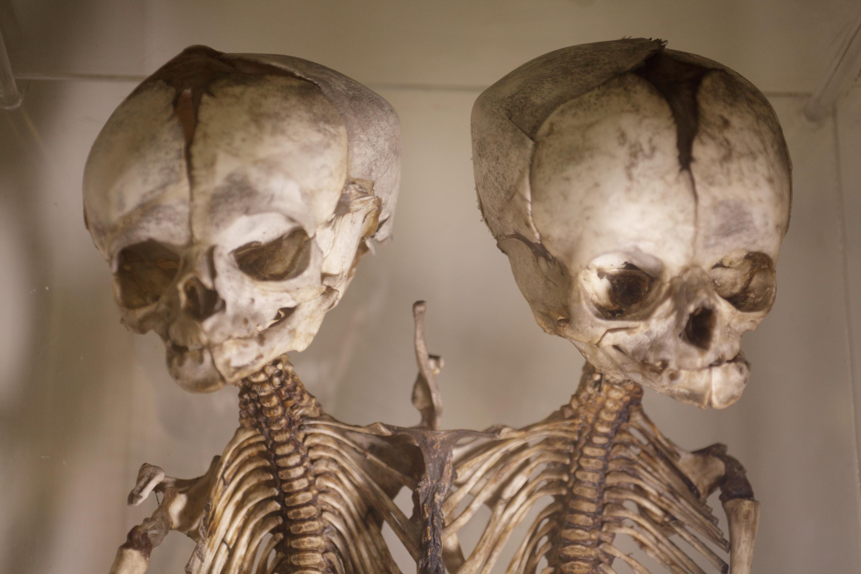 World\'s 10 weirdest medical museums | CNN Travel