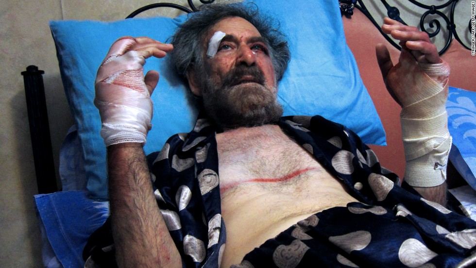 Ferzat was attacked in Damascus in 2011. His hands were broken so that he wouldn't be able to draw again, he said. The cartoonist left the country to get needed medical treatment.