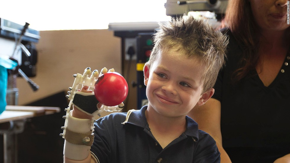 Robohand produces 3-D printed mechanical fingers, hands and arms.<br />The first Robohand ever created was made for five-year-old Liam, who was born with a condition that left him with no fingers on his right hand.