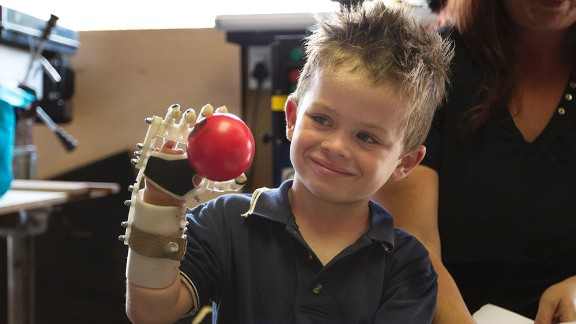 Robohand produces 3-D printed mechanical fingers, hands and arms. The first Robohand ever created was made for five-year-old Liam, who was born with a condition that left him with no fingers on his right hand.