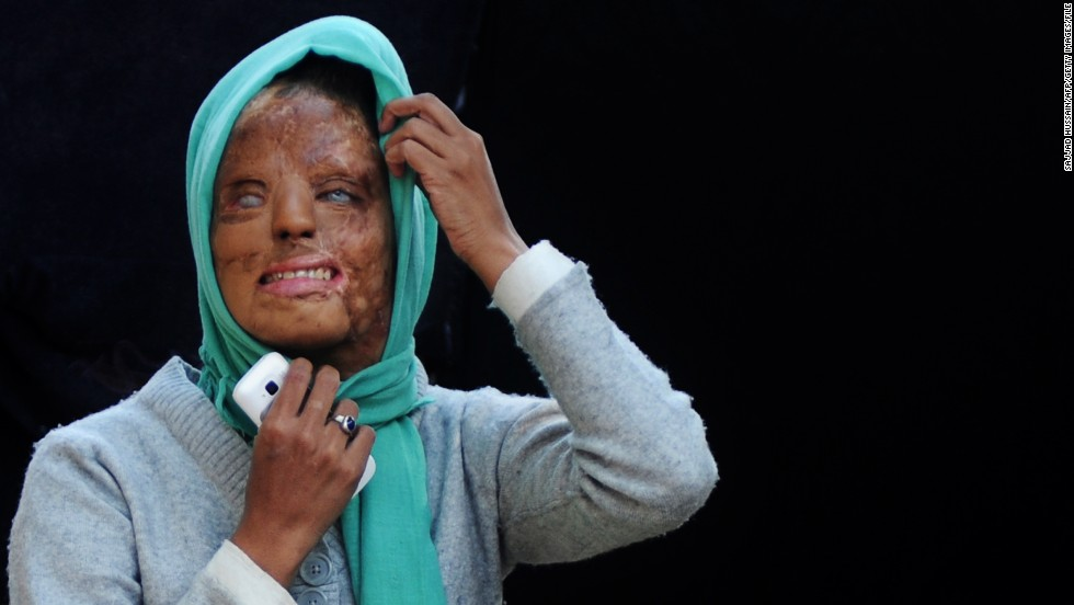 Acid attack victim fights for justice